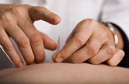 acupuncture obstétricale