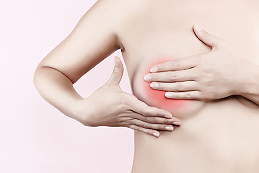 Perfectionnement dans la prise en charge du cancer du sein : Les traitements, les séquelles, la reconstruction. Rôle du kinésithérapeute